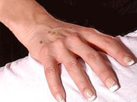 Как избавиться от пигментации на коже