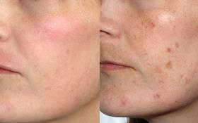 Способы избавления от пигментации на коже