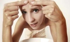 Жирная кожа лица - причины