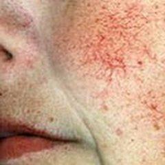 Причины появления купероза
