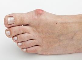 Онемение мизинцев рук ночью причины и лечение